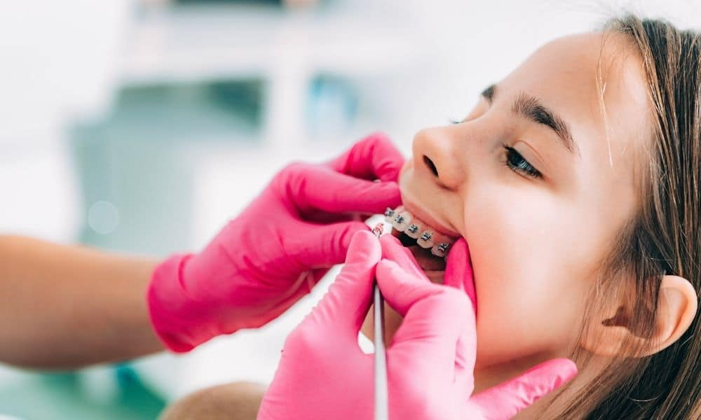 Simple Ways To Help Your Child Adjust to Braces