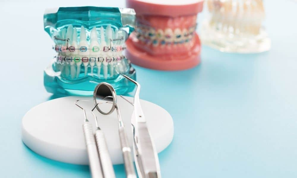 Why Are Orthodontics Important? 3 Essential Reasons