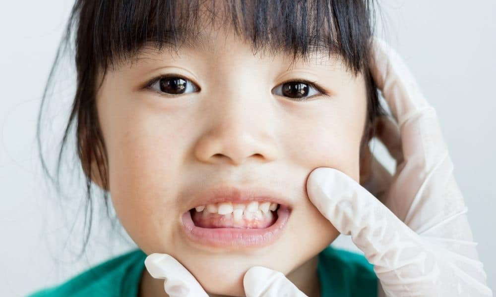 5 Signs You Should Bring Your Child To an Orthodontist